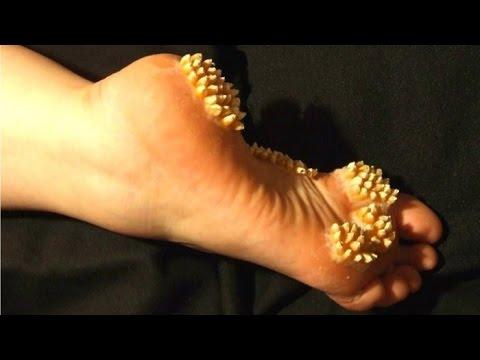 warts on foot multiplying
