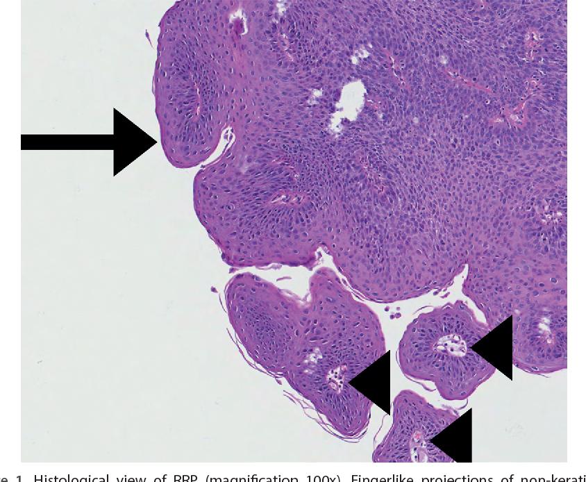 recurrent respiratory papilloma histology