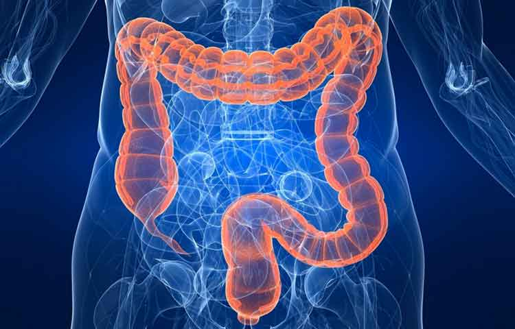 invinge cancerul colorectal