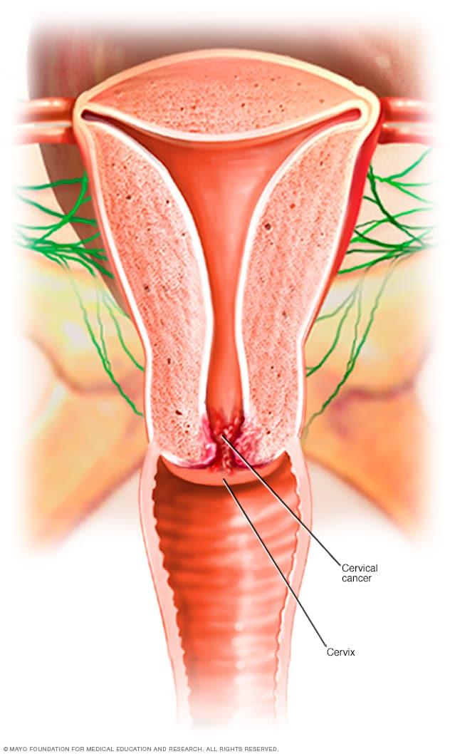 hpv uterus symptoms)