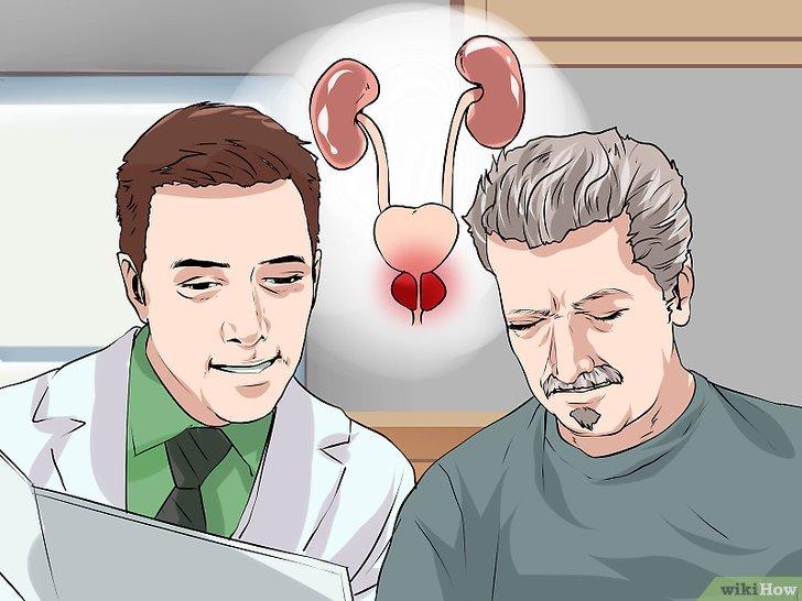 Colectat suc de prostata