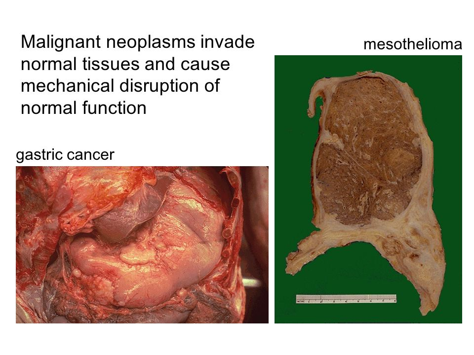 malignant neoplasm cancer)