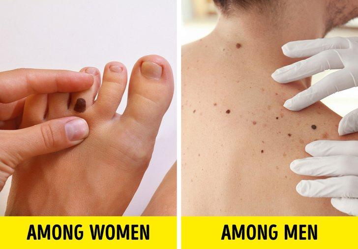 unde apare cancerul de piele
