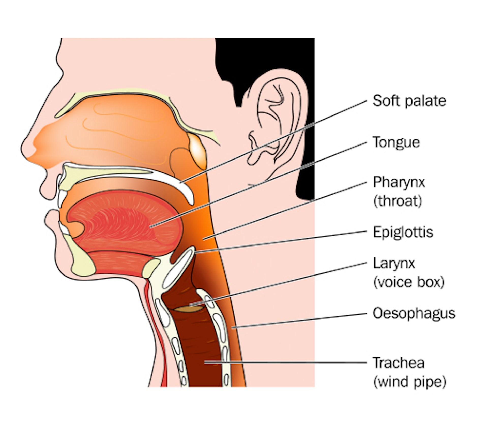 gardasil laryngeal papilloma
