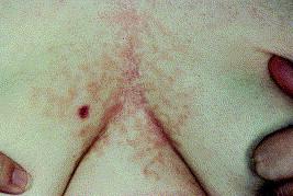 vaccin papillomavirus cancer papillomavirus est ce une mst