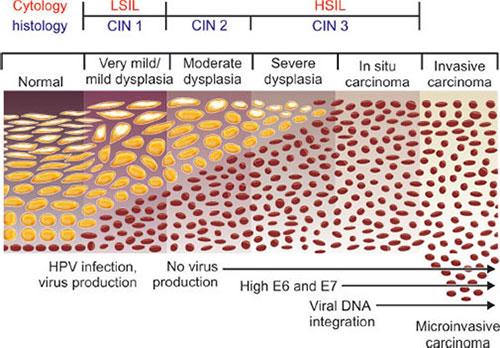 cervical cancer cin3