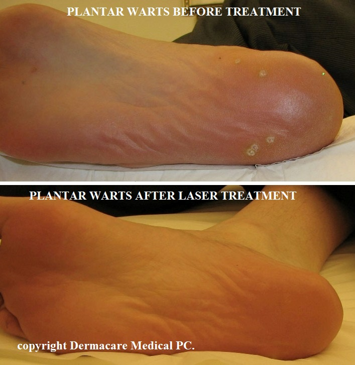 warts treatment by laser cheloo nascut