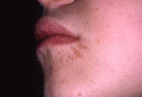 papillomavirus verrue visage)
