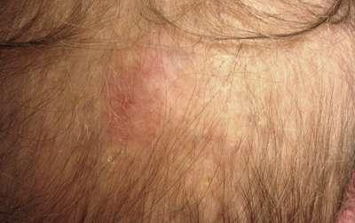 cancer de piele bicarbonat)