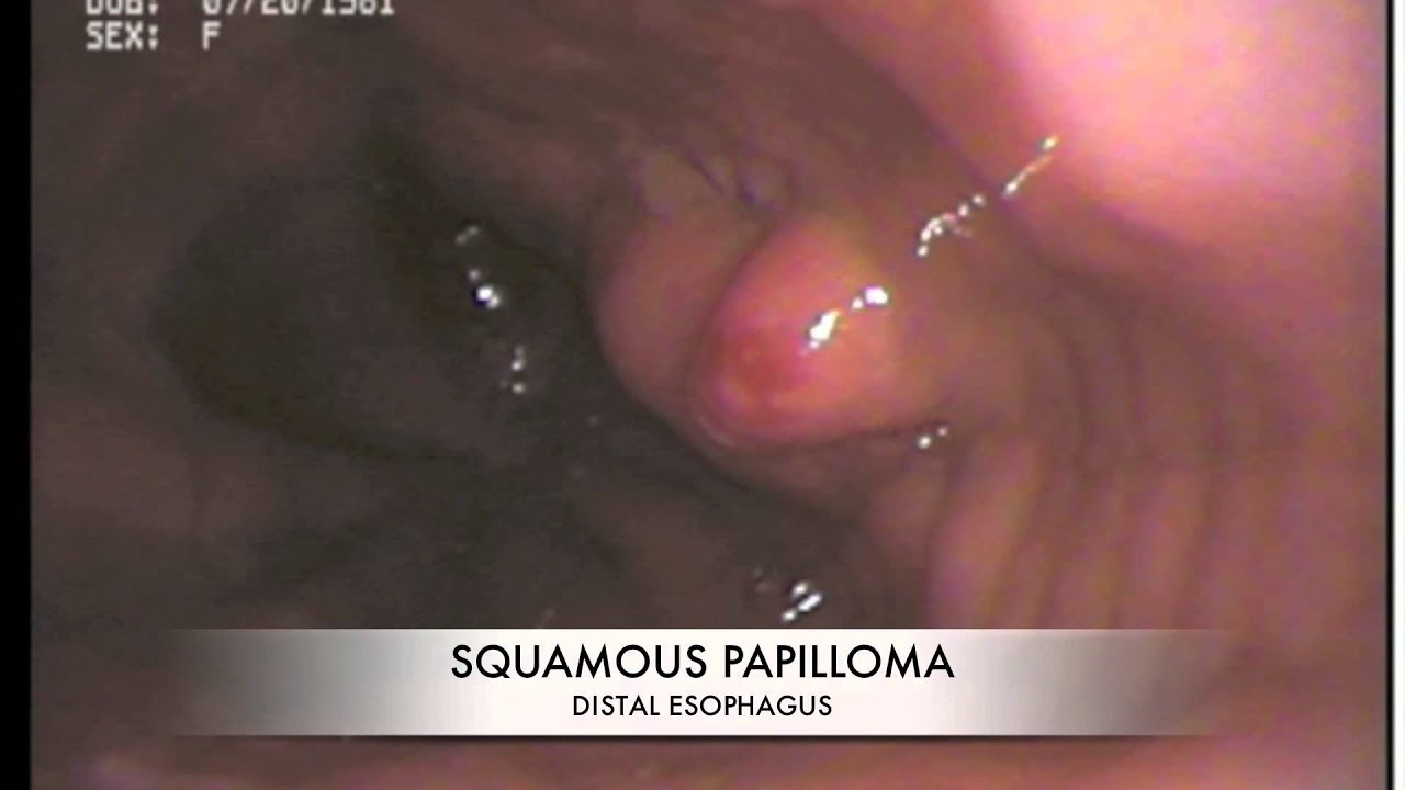 squamous papilloma esophagus treatment)