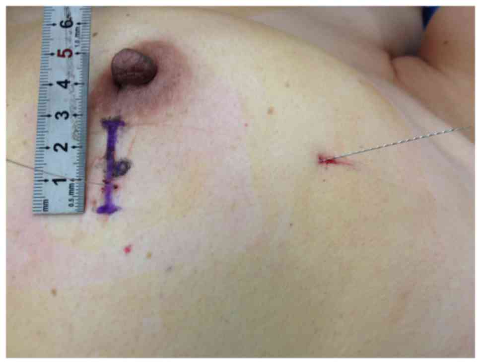 intraductal papilloma excision procedure
