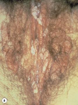 condyloma acuminata incubation)