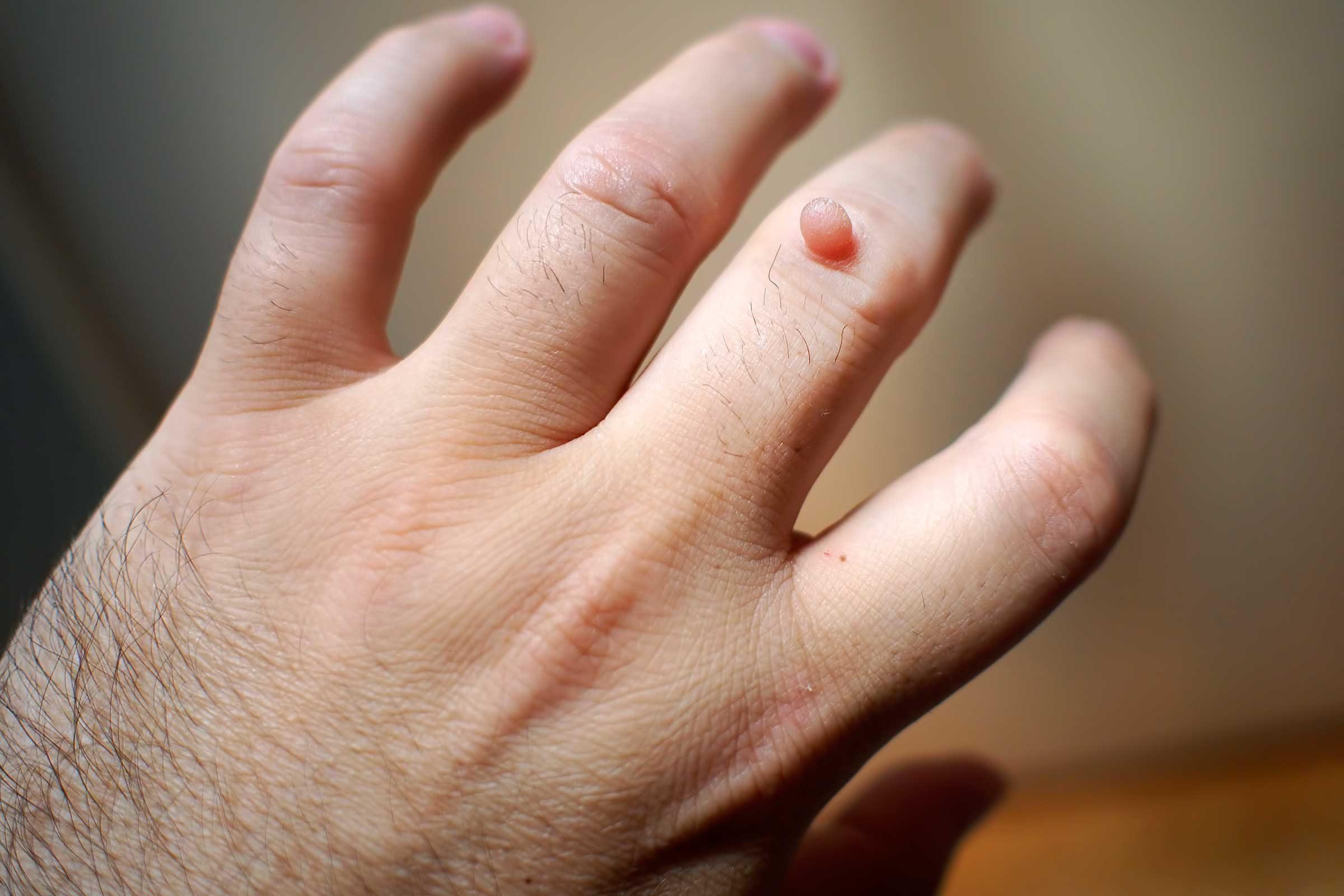 warts on human skin)