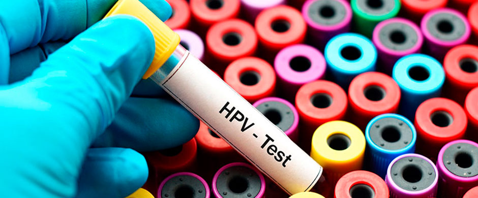 virus papiloma humano contagio con preservativo colorectal cancer 5-fluorouracil