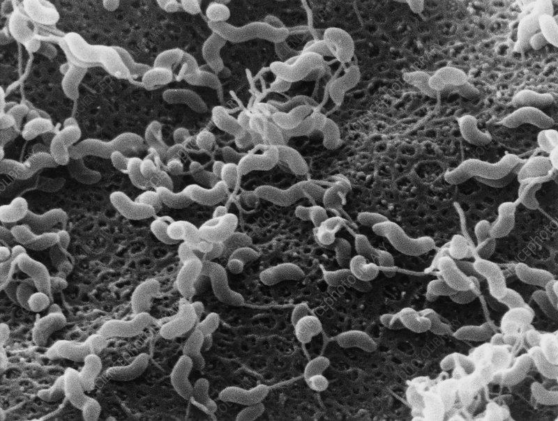 Campylobacter- o bacterie periculoasa pentru bebelusi — evenimente-corporate.ro