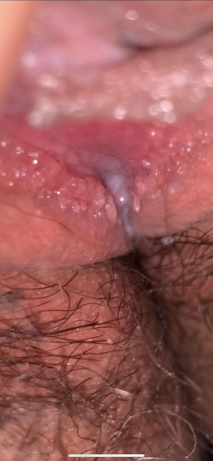 vestibular papillae itching