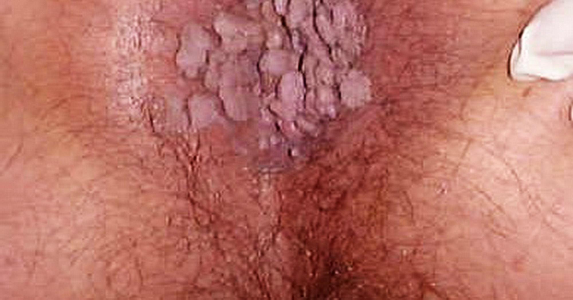 verruche genitali da papillomavirus umano)