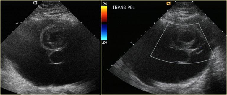 ovarian cancer vs cyst)