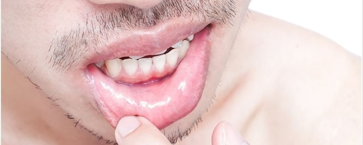 virus del papiloma humano verrugas o herpes genital hpv mouth early signs