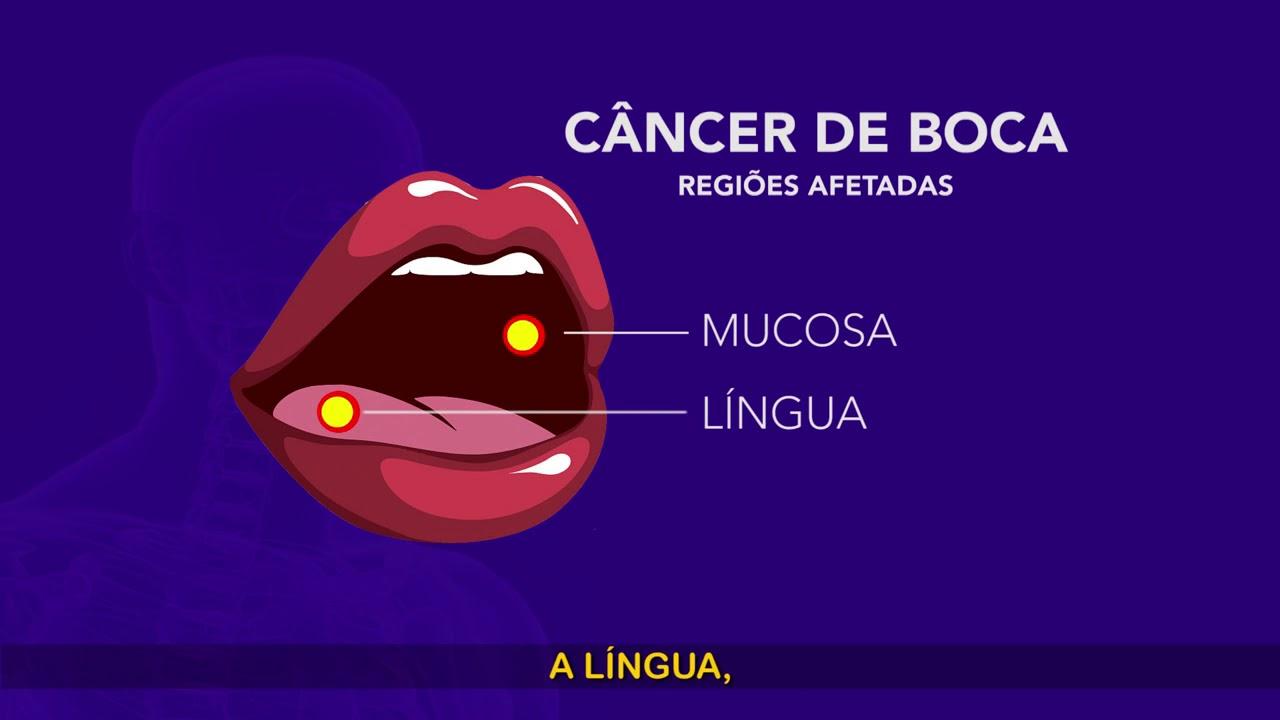 hpv e o cancer de boca