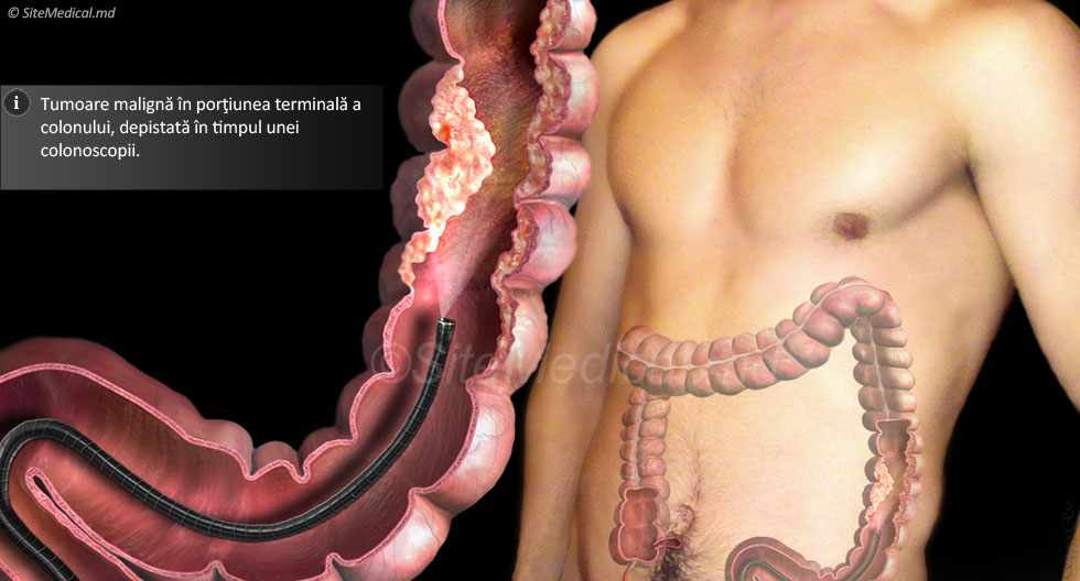 Cancer de colon | Simptome, cauze si tratament | SANADOR