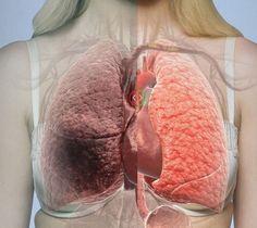 cancer la plamani se poate trata