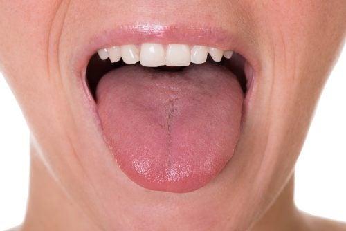 papillomavirus sur la langue)