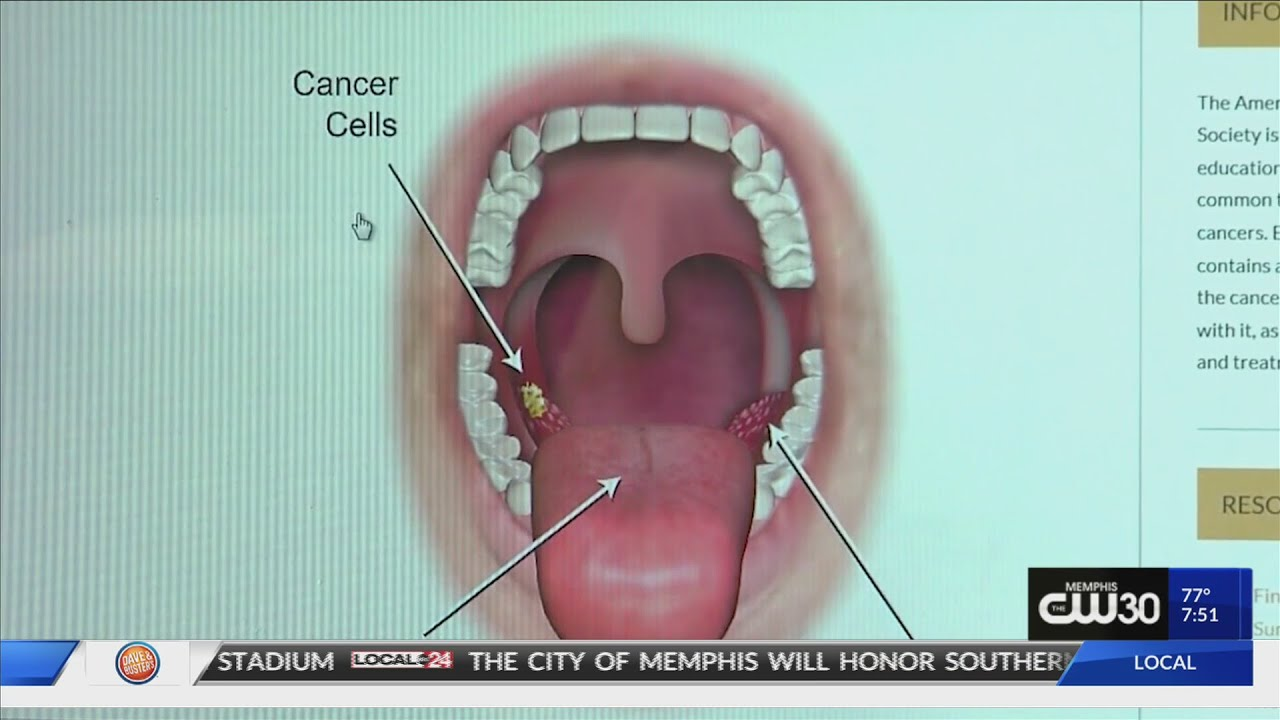throat cancer with hpv