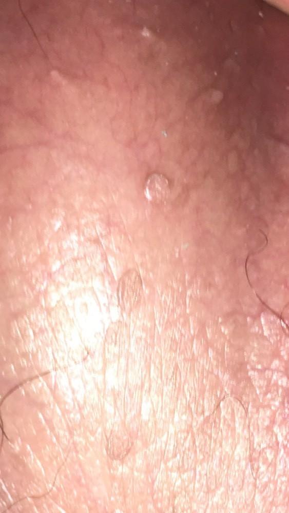 papillomavirus verrue genitale)