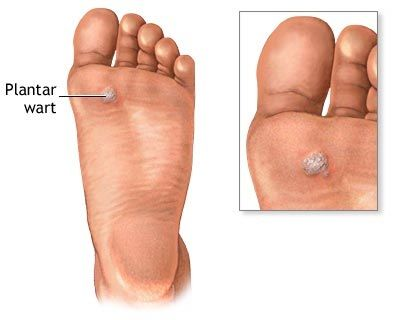 wart on foot causes