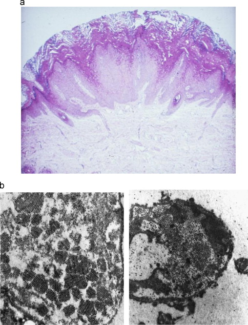 papillomavirus transmission indirecte)