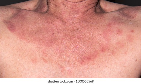 human papillomavirus infection itching)