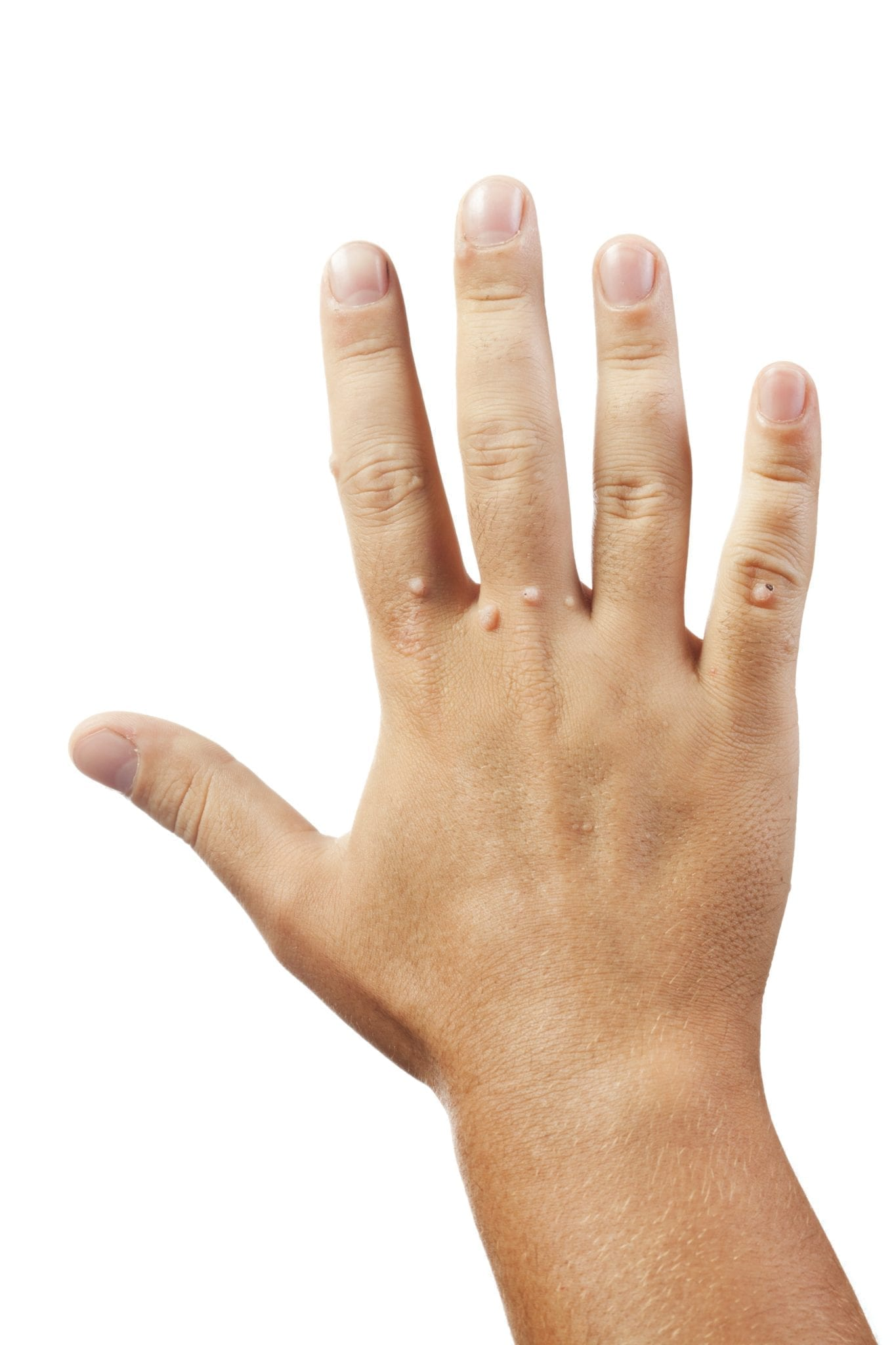 are warts on hands contagious by touch)