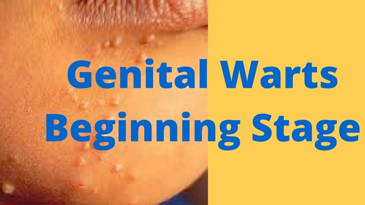 hpv warts stages