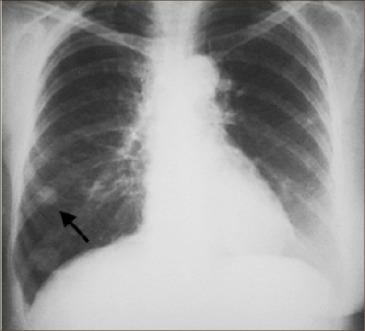 Nodulii pulmonari