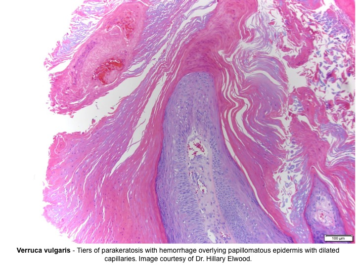 hyperkeratosis papilloma)