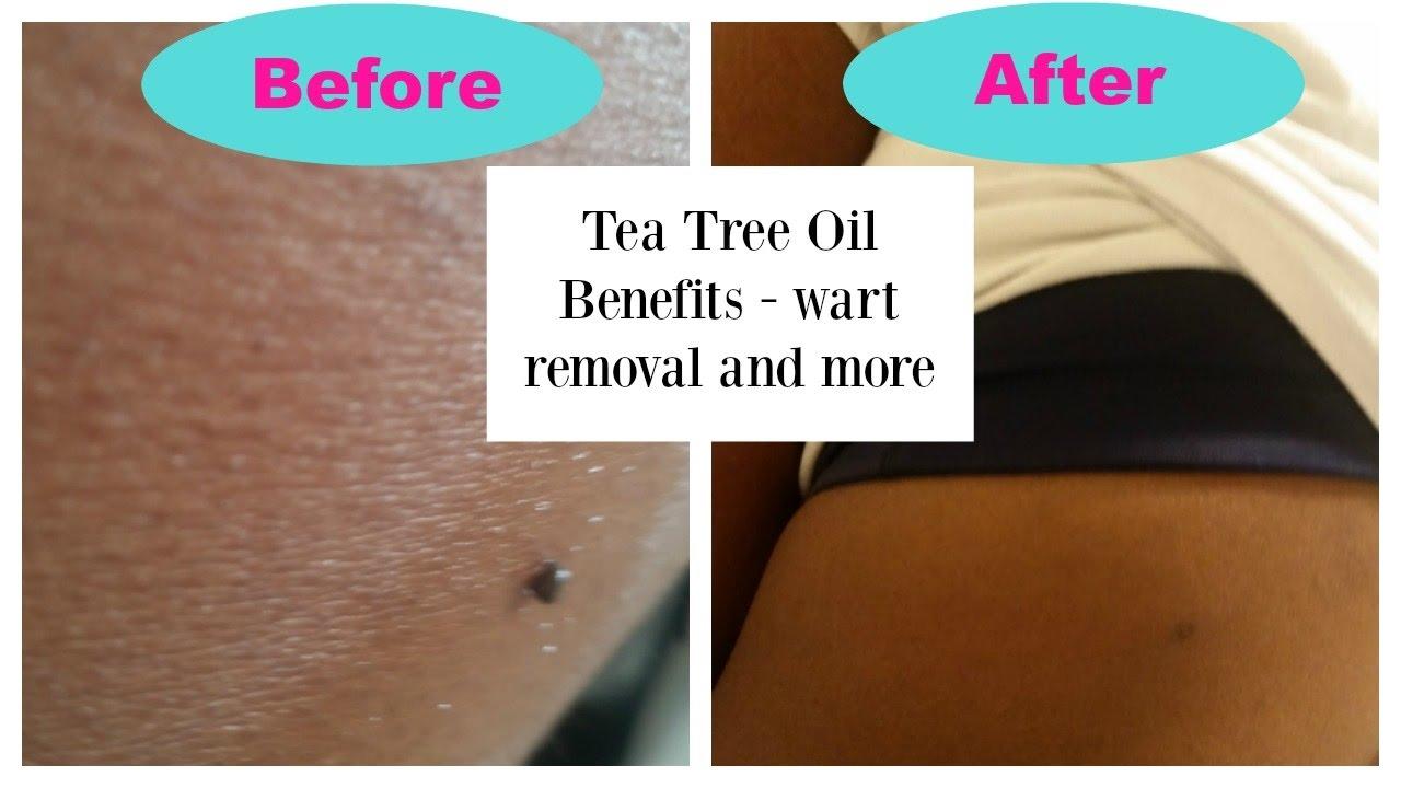 plantar wart home remedy tea tree oil