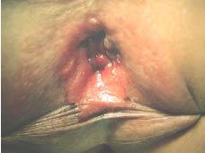 papiloma escamoso perianal)