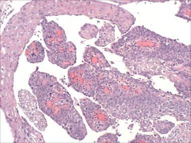 bladder papillomatosis human papillomavirus causes plantar warts