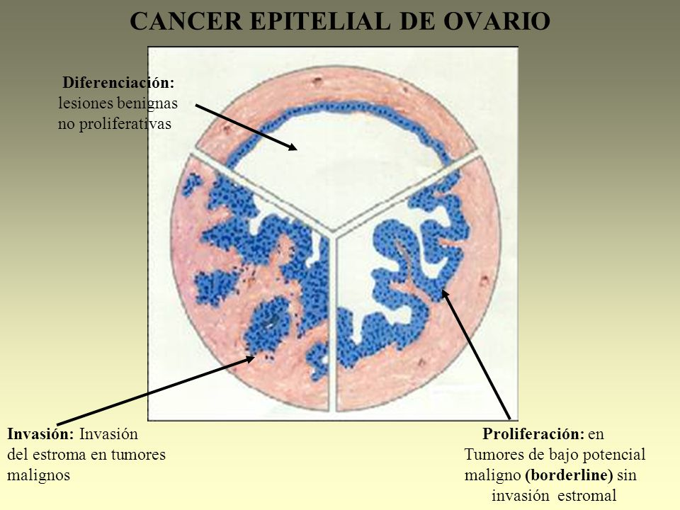 cancer epitelial ovario)
