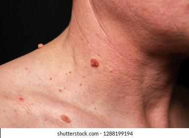 papilloma colli neck)