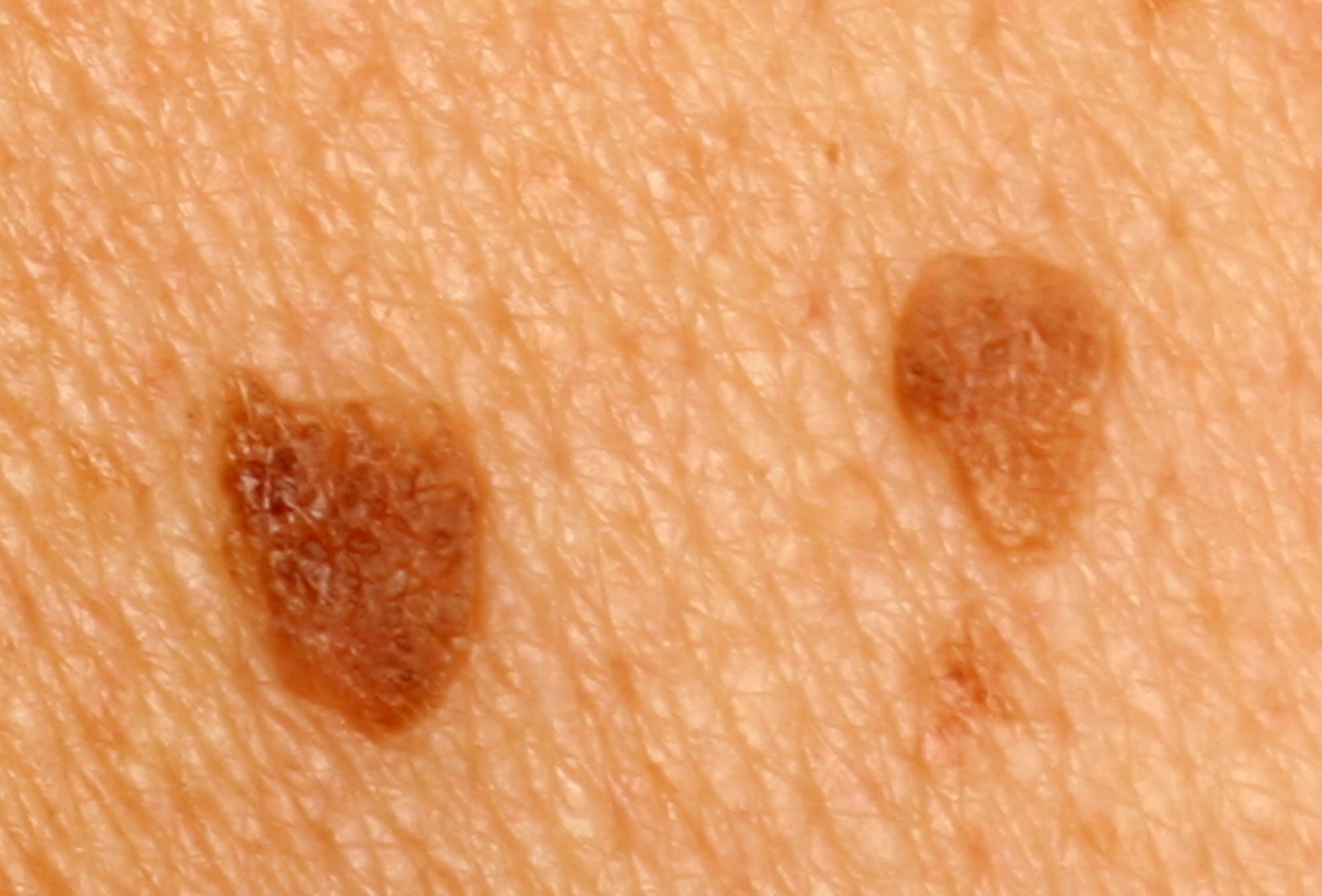 papilloma skin benign
