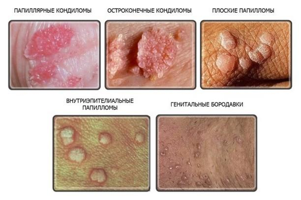 Papiloma virus i artroza