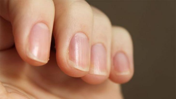 cancer unghii piele cancer sarcoma sinovial sintomas