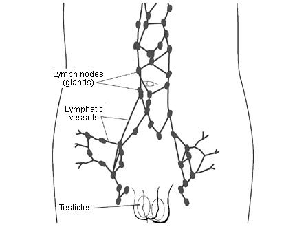 testicular cancer to lymph nodes