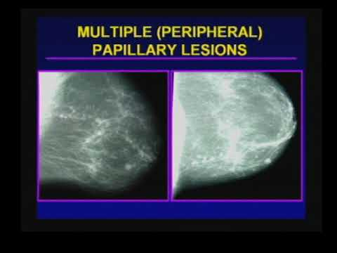 papilloma lesion in breast)
