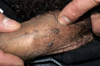 hpv warts for years