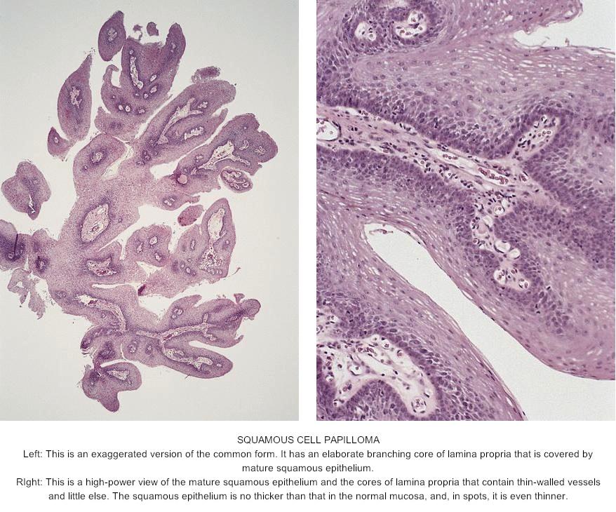 squamous papilloma tongue pathology outlines)