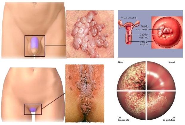 hpv e sintomi