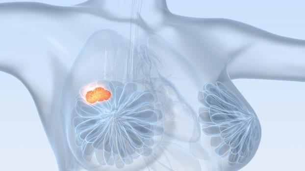 papilloma virus al seno sintomi)